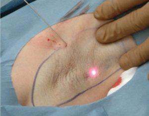 Лазерное лечение гипергидроза подмышек