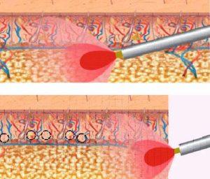 Лазерное лечение гипергидроза