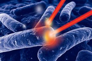 Лечение с помощью лазера