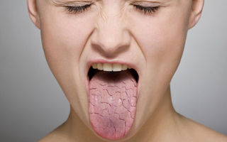 Как избавиться от сухости во рту и неприятного запах